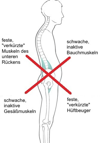 Das Lower Cross Syndrom