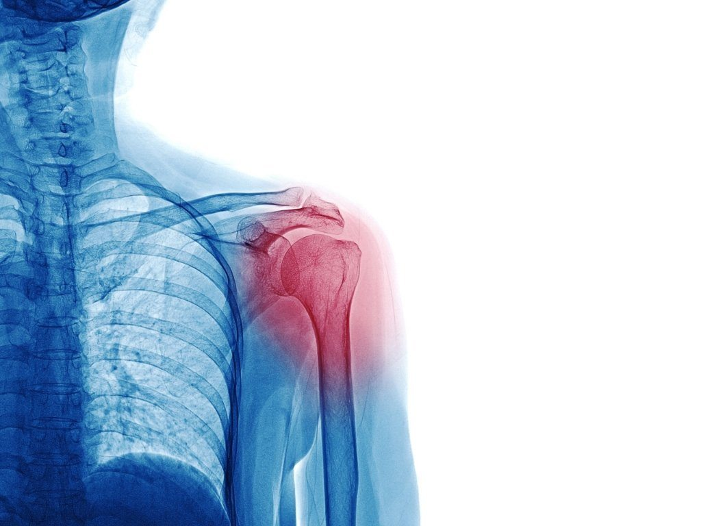 Was ist das Schulter-Arm-Syndrom