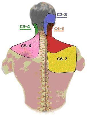 Schulter - und Nackenschmerzen