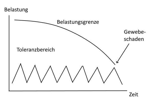 schmatisches Diagramm bei Rückenschmerzen beim Sitzen