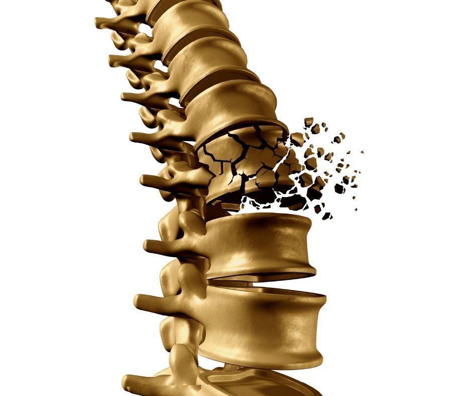 Osteochondrose in der LWS behandeln