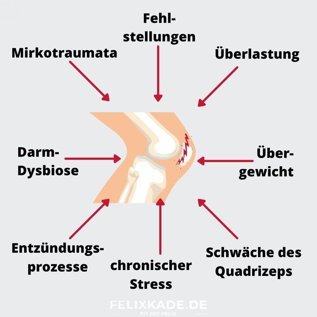 Ursache für Chondropathie im Knie