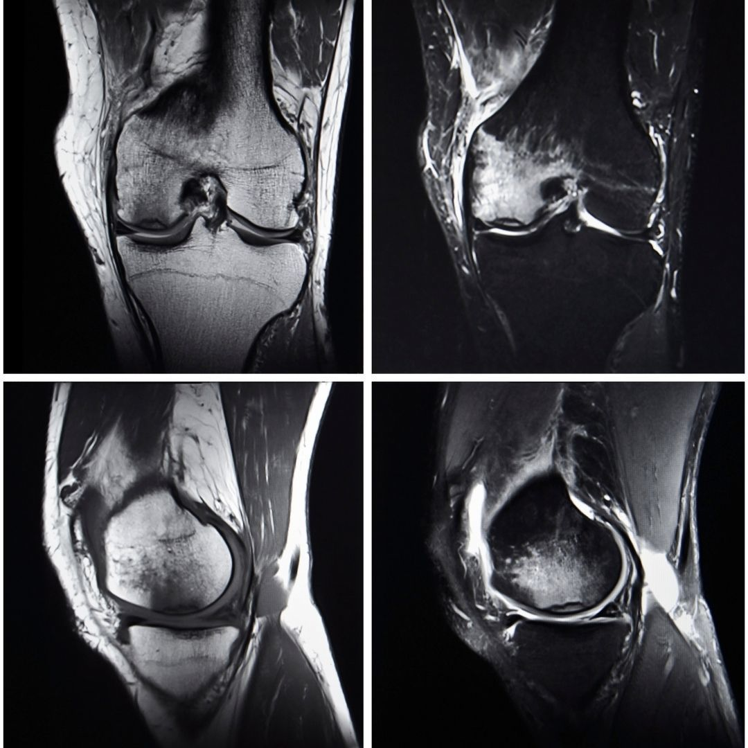 Knirschen im Knie als Schmerzursache?