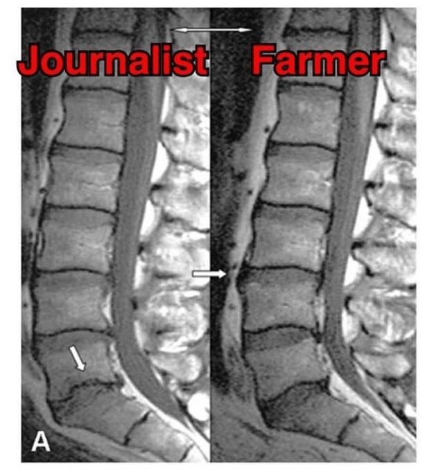 Rumpftraining bei Rückenschmerzen