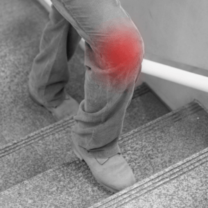 Treppensteigen und Knieschmerzen